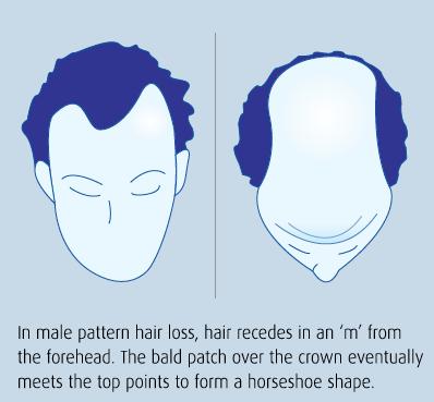 pattern-hair-loss